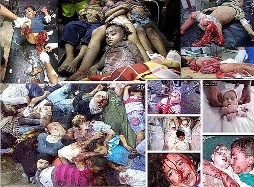 Zerfetzte Kinder in Gaza
